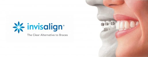Should I straighten my teeth with invisalign?